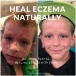 ECZEMA healing stories – HENRY