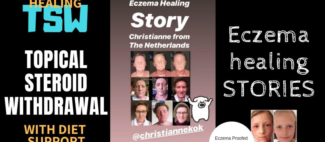 Eczema_story_Christy